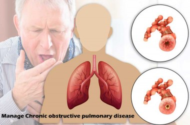 How to Manage Chronic obstructive pulmonary disease?